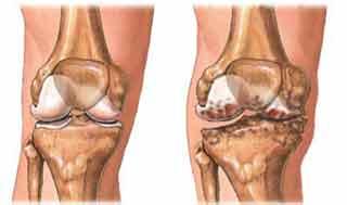 از بین رفتن غضروف مفصلی و ایجاد استخوان های اضافه در اطراف سطح مفصلی از علائم آرتروز است