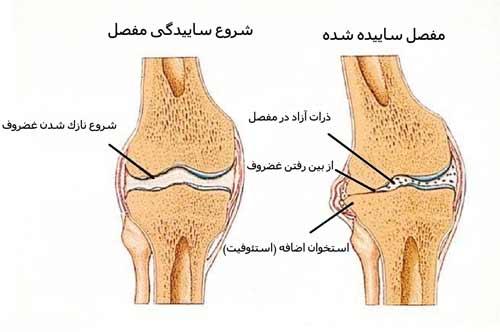 در آرتروز غضروف مفصل بتدریج نازک شده و از بین می رود. استخوان اضافه در اطراف سطح مفصل بوجود میاید