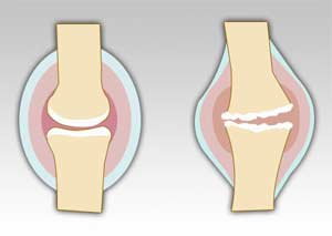 تخریب وغضروف مفصلی و افزایش مایع مفصلی در آرتروز