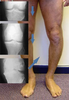 تخریب تدریجی سطح مفصلی زانو موجب تغییر شکل مفصل و پرانتزی شدن پا می شود