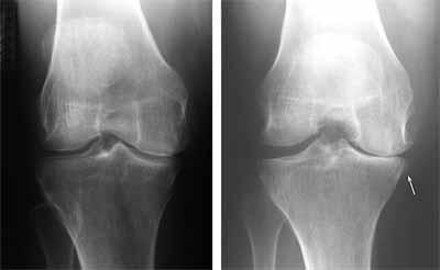در تصویر سمت راست کاهش فضای مفصلی در یک زانوی ساییده شده دیده میشود و تصویر سمت چپ طبیعی است