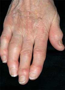 برجستگی سطح پشتی بند انتهایی انگشتان دست از علائم آرتروز است